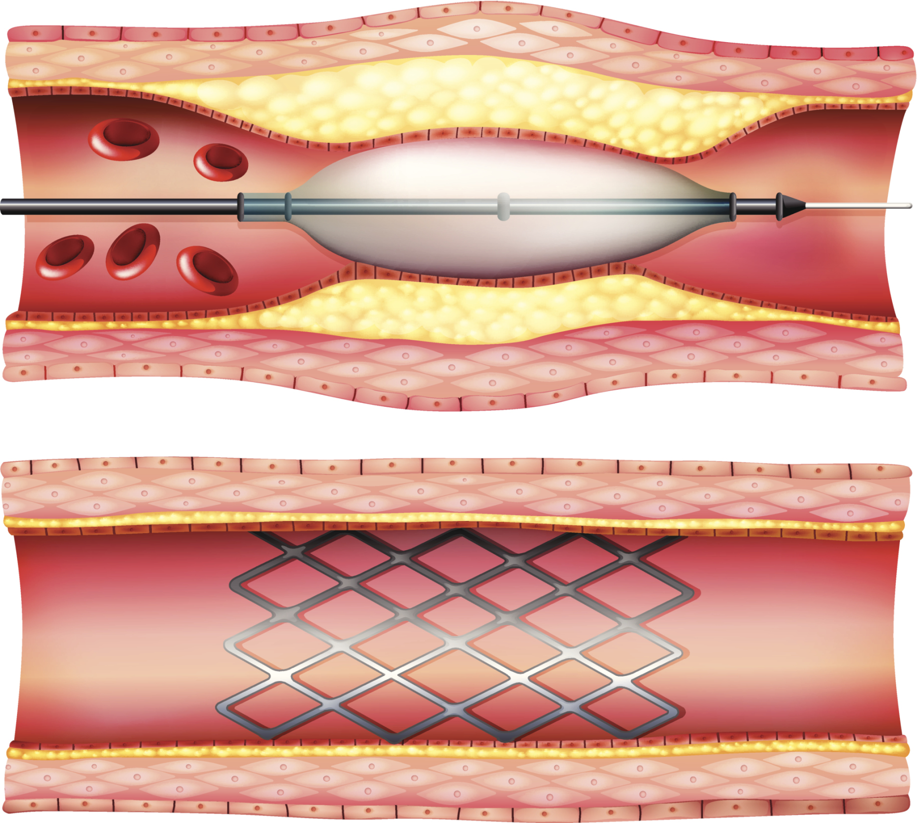 the risks of percutaneous coronary angioplasty Covers procedure, which is also called percutaneous coronary intervention, to widen narrow coronary arteries for stable angina and heart attack links to a slideshow of angioplasty.