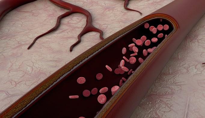 FDA Approves Entresto for Systolic Heart Failure