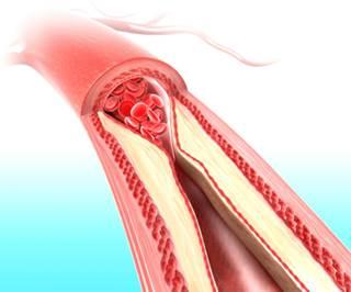 Những điều cần biết về rối loạn lipid máu