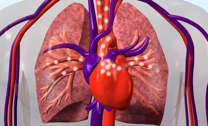MRIs Can Predict Outcomes in Pulmonary Arterial Hypertension