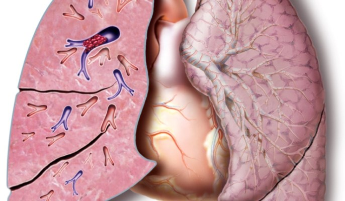 Surgical Pulmonary Embolectomy Outcomes Not Affected by Thrombus Location