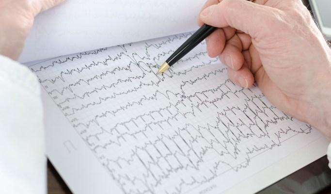 Anticoagulant Treatment Falling Short in AFib Patients