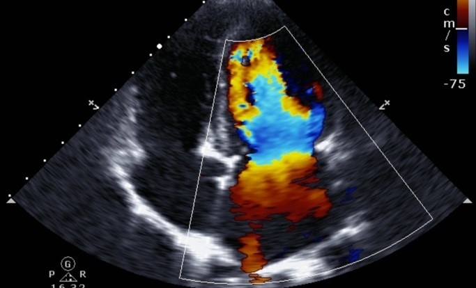 Data derived from speckle-tracking echocardiography and conventional methods and data derived solely from speckle-tracking echocardiography showed a high degree of statistical overlap.