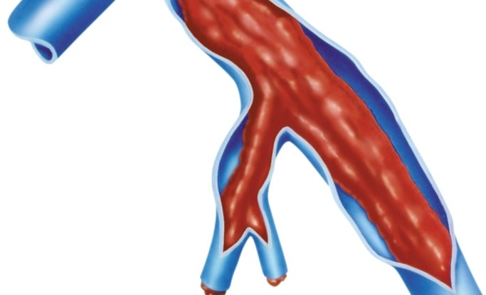 Incidence risk is lower with first superficial vein thrombosis after stopping anticoagulant therapy compared to those with proximal deep vein thrombosis.