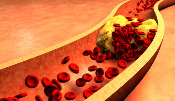 Coronary Heart Disease Risk Increased With Clonal Hematopoiesis