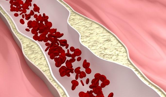 VIDEO: Alirocumab Reduced Use of Apheresis