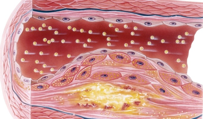 Noncalcified, High-Risk Coronary Plaque Burden Increased With Psoriasis