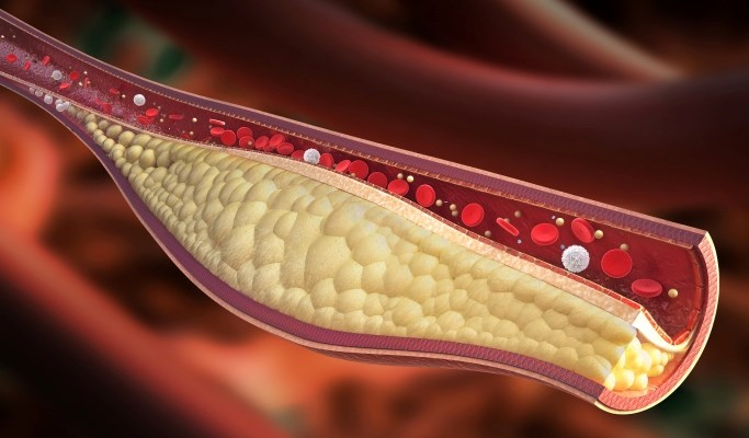 Are Patients Aware the Importance of Cholesterol Management?