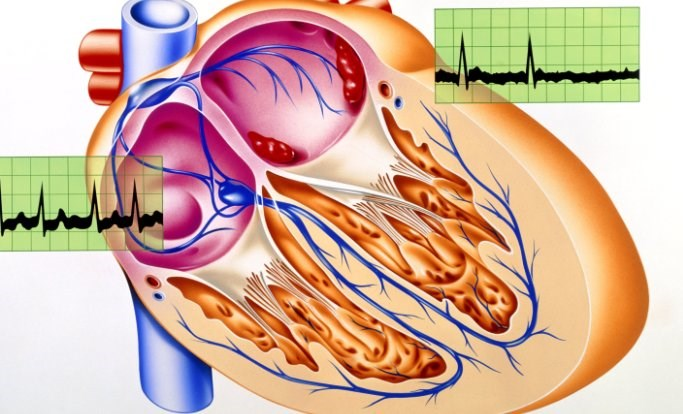 Heart Failure Risk in Women With Afib