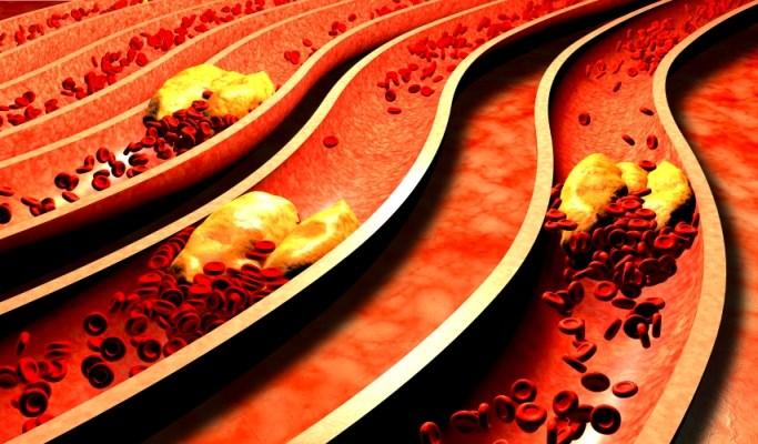 CVD Risk Management in Rheumatoid Arthritis: Updated Guidelines