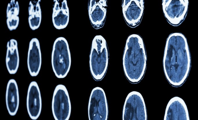 Post-Stroke Epilepsy Affected by Age and Lesion Volume