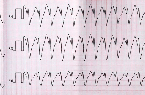 Short Episodes of Tachycardia, AFib Have Little to No Effect on Stroke Risk