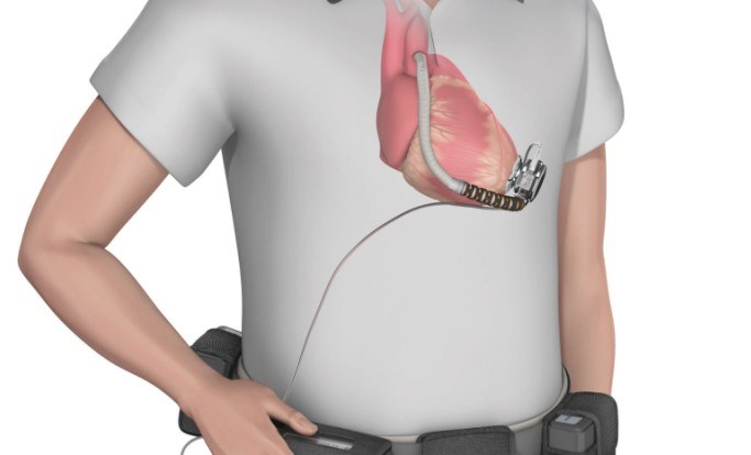 LVAD-Associated Mechanical Unloading in Ischemic and Nonischemic Cardiomyopathy