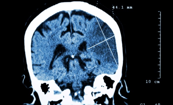 Testosterone Use Leads to Adverse Cerebrovascular Event: A Case Study