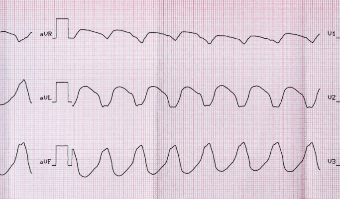 Ventricular Tachycardia Risk Reduced With Stereotactic Body Radiation