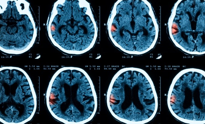 Intracranial Hemorrhage Risk Increased with Selective Serotonin Reuptake Inhibitors