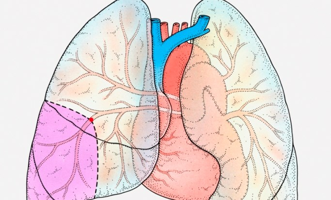 Anatomic Location of Thrombus Not Affected Outcomes of Surgical Pulmonary Embolectomy