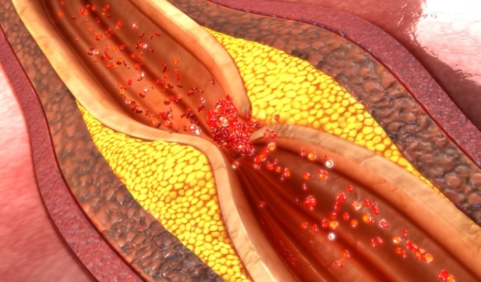 Biomarker-Based Model Predicts Mortalty in Coronary Heart Disease