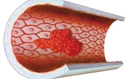 Effect of Glucocorticoid Use on Endothelial Function