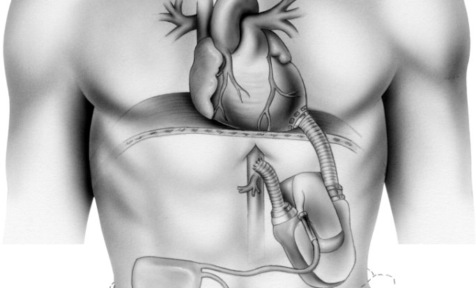 LVAD Improves Cardiac Function in Patients With Heart Failure