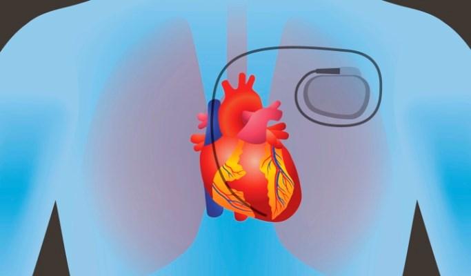Brugada Syndrome Symptoms Managed by Implantable Cardioverter-Defibrillators
