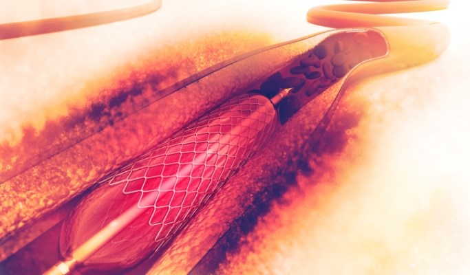 STEMI Mortality Reduced With Admission to Primary PCI Center