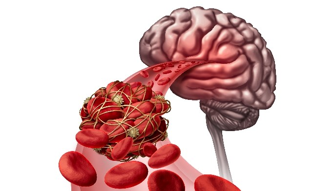 Results of the ASTER trial were presented at the International Stroke Conference.