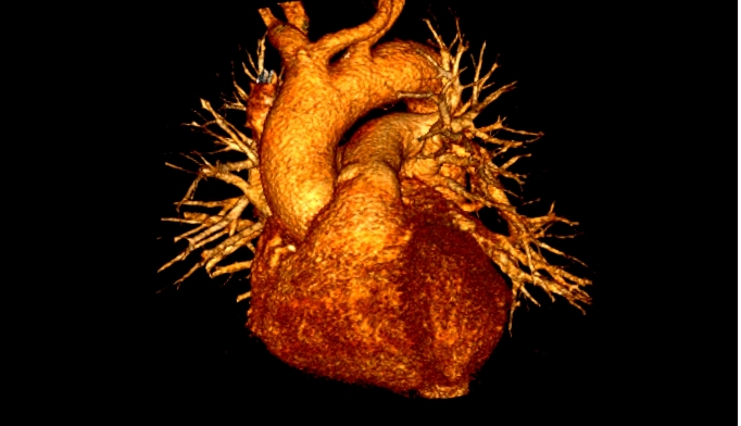 Cardiovascular Disease Risk In Patients With Systemic