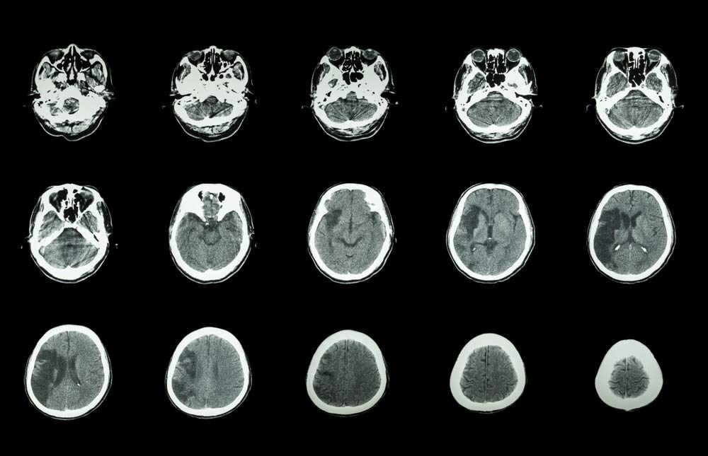 Stroke Outcome Measure Scores May Predict Discharge Destination