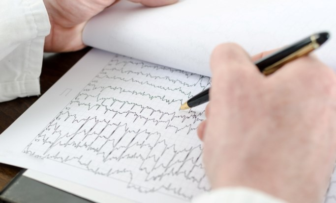 Bradycardia was less frequent during daytime hypoglycemia while atrial ectopics were more frequent.