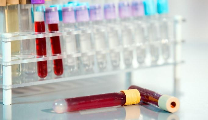 The test has been found to be more accurate than standard diagnostic methods in identifying coronary artery disease.