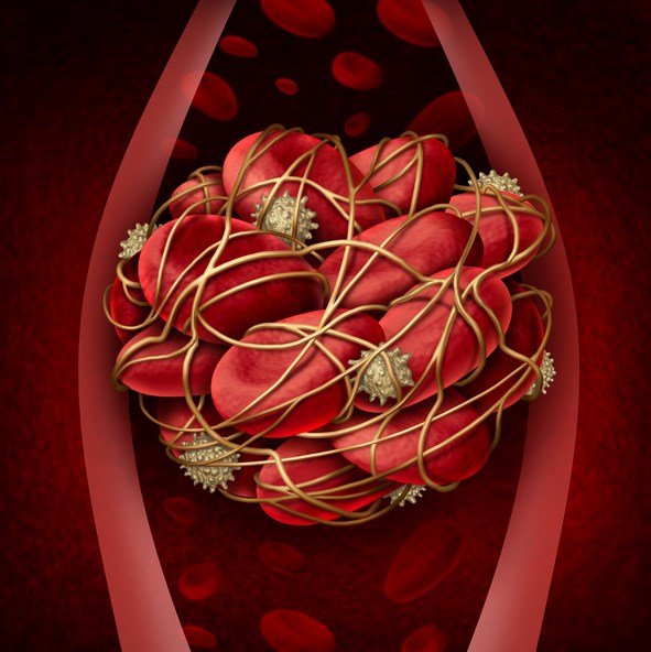 Venous Thromboembolism Risk Elevated in Dialysis Patients