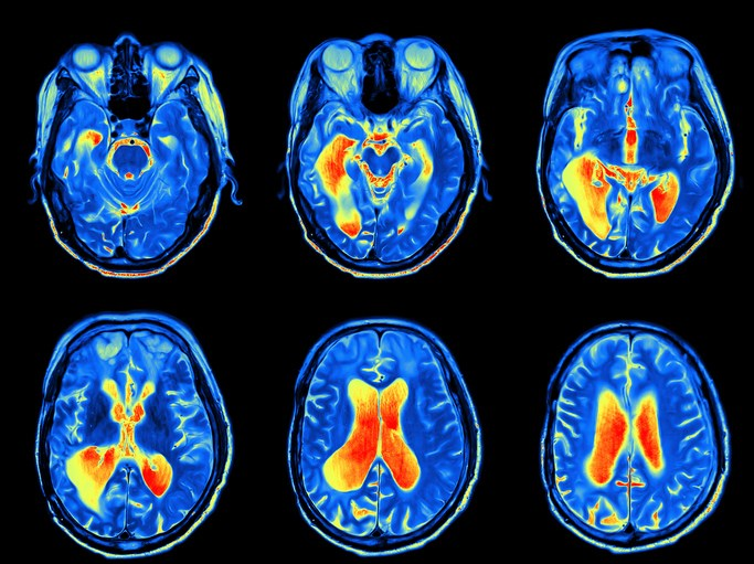 Overweight/Obesity Affects Brain Function in Type 2 Diabetes
