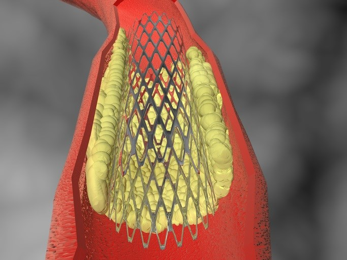 Heart Stents Coated With Sildenafil May Reduce Clots, Aortic Stenosis