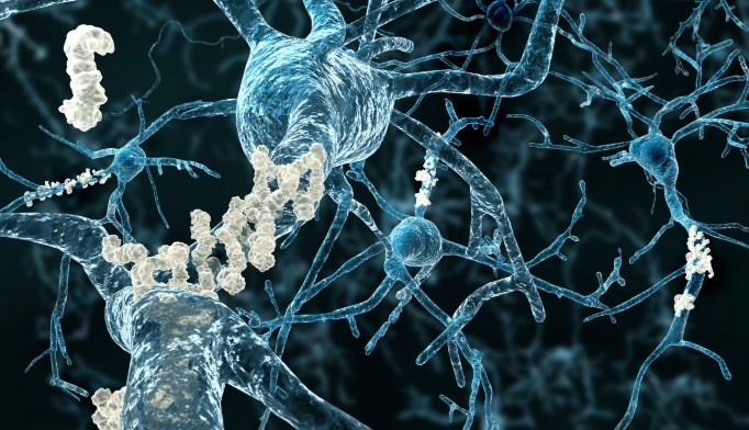 Amyloid deposits were noted in the brains of seniors with obesity, diabetes, and estimated cholesterol.