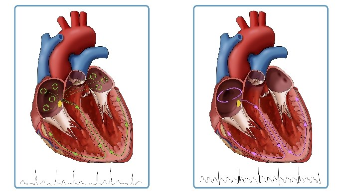 Surgical ablation is recommended in certain patients with atrial fibrillation.