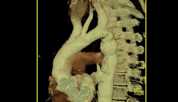 PAH-Associated Congenital Heart Disease Outcomes Predicted by Pulmonary Artery Compliance