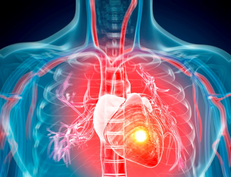 Silent MI Associated With Increased Risk of Heart Failure