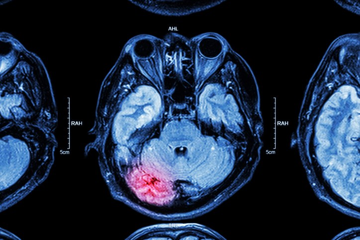 Improving Stroke Diagnosis Accuracy: An Expert Interview