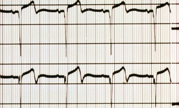 Newly Diagnosed Atrial Fibrillation Benefits From Rivaroxaban, Dabigatran