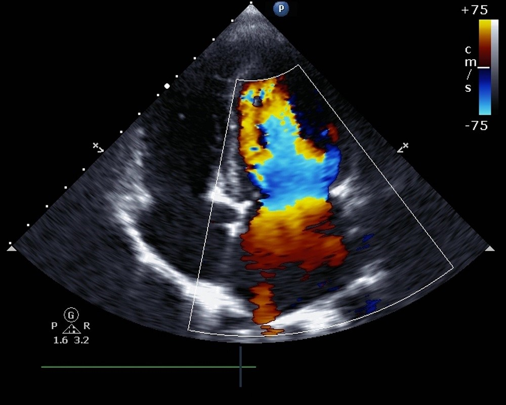 CKD patients with and without diastolic dysfunction had average serum phosphate levels of 7.3 and 5.5 mg/dL, respectively.