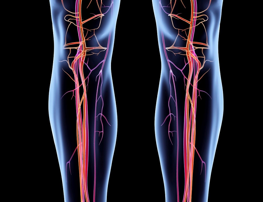 Peripheral Artery Disease-Related Leg Ischemia and Antihypertensive Use