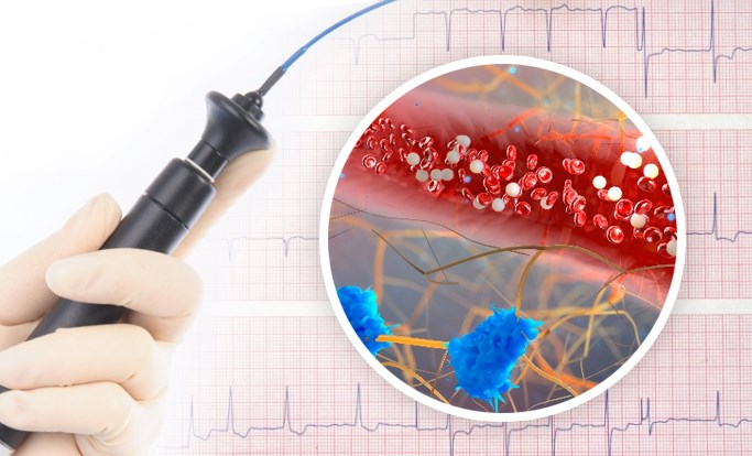 Atrial Fibrillation: Updates in Screening, Surgical Ablation, and Anticoagulation Use