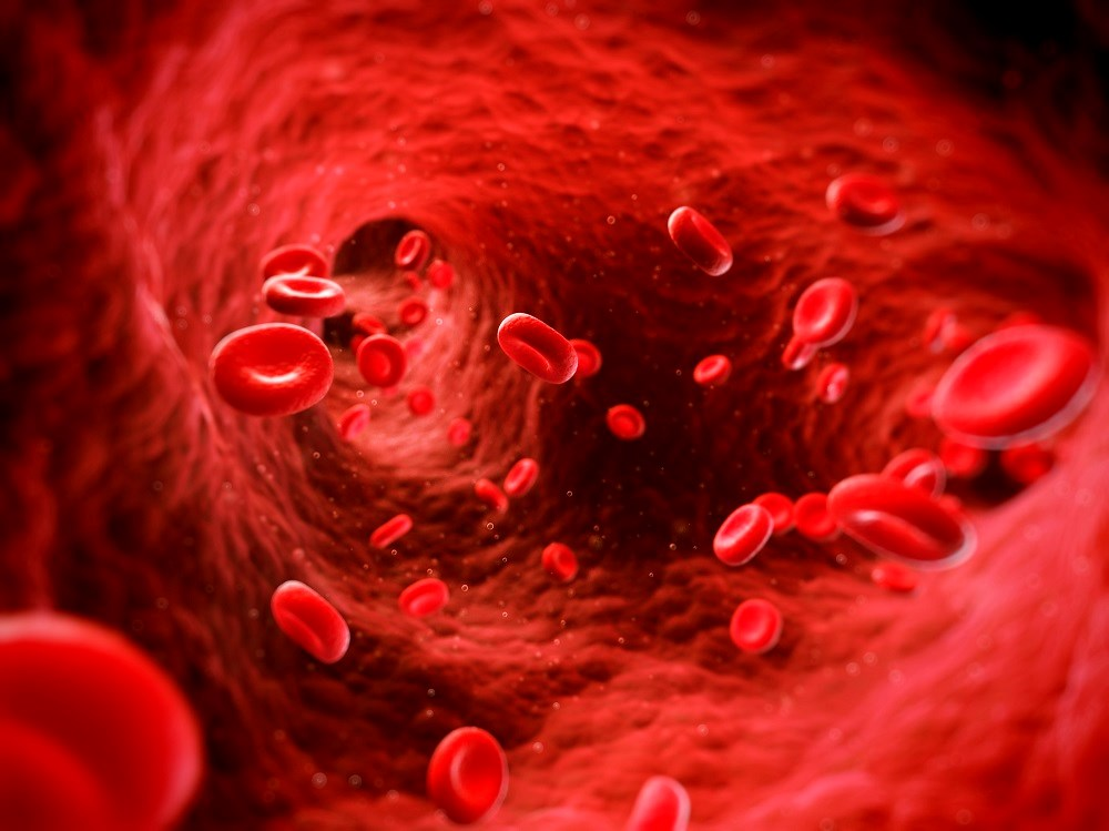 Hereditary Hemochromatosis Patients Can Be Blood Donors