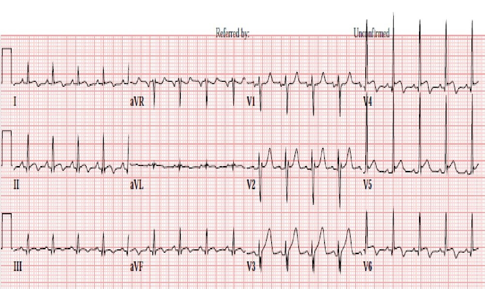 Case Study: Substernal Chest Pressure in a Young Man