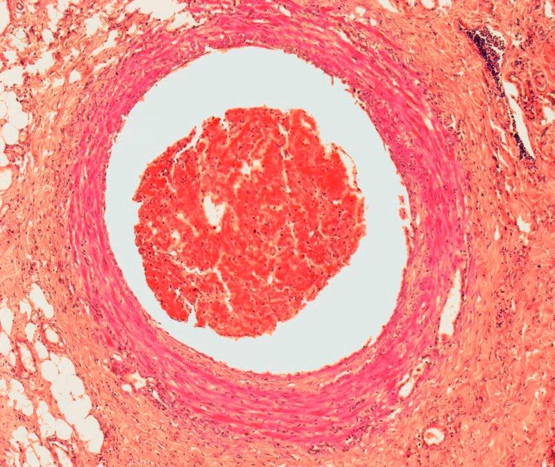 Preventing Venous Thromboembolism After Hip, Knee Arthoplasty: Comparing Anticoagulant Efficacy