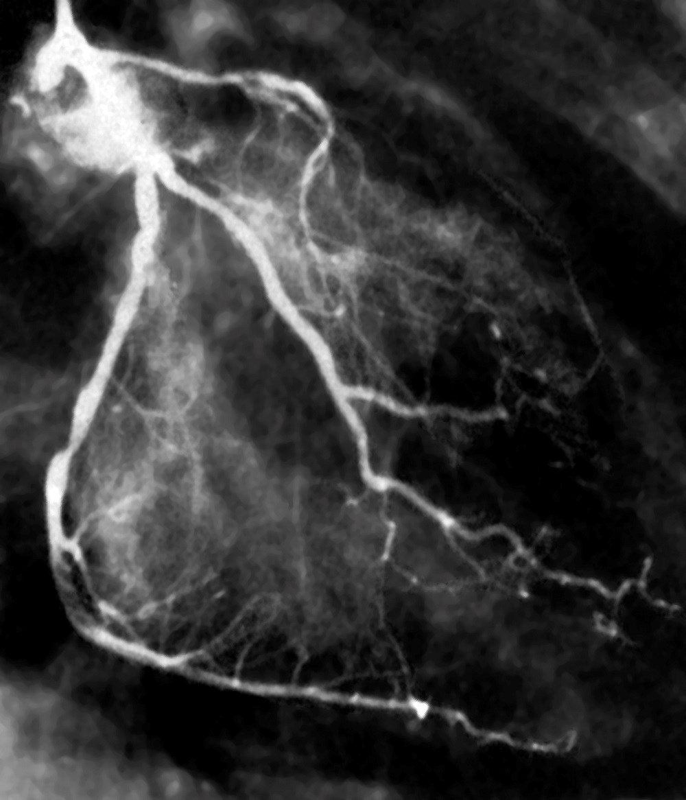 Abnormal myocardial perfusion scintigraphy showed worse outcomes in high-risk patients with asymptomatic diabetes.