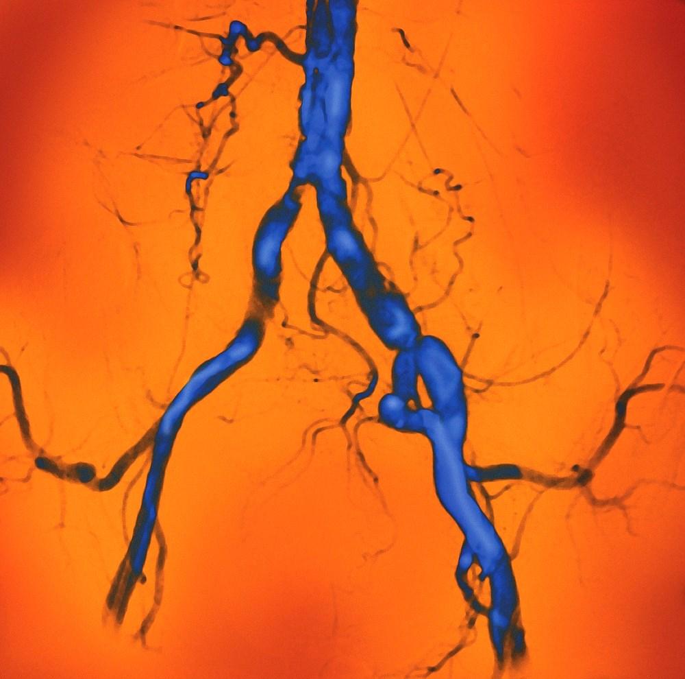 Atherosclerotic Disease Benefits From Interleukin-1β Targeting