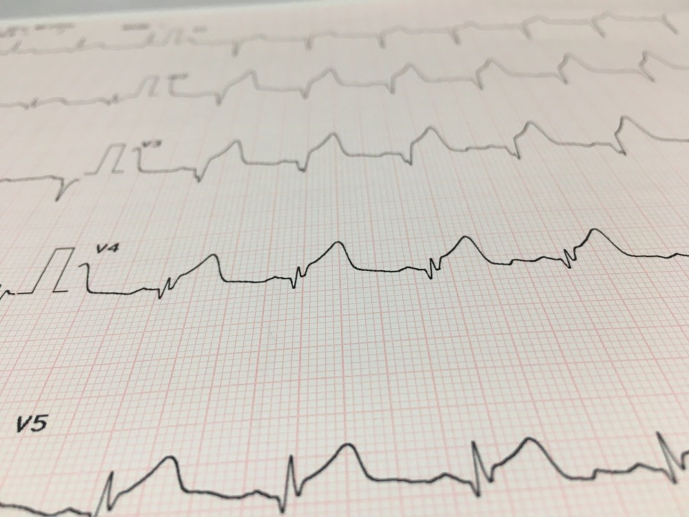 New ESC Guidelines Provide Insight into ST-Segment Elevation Management