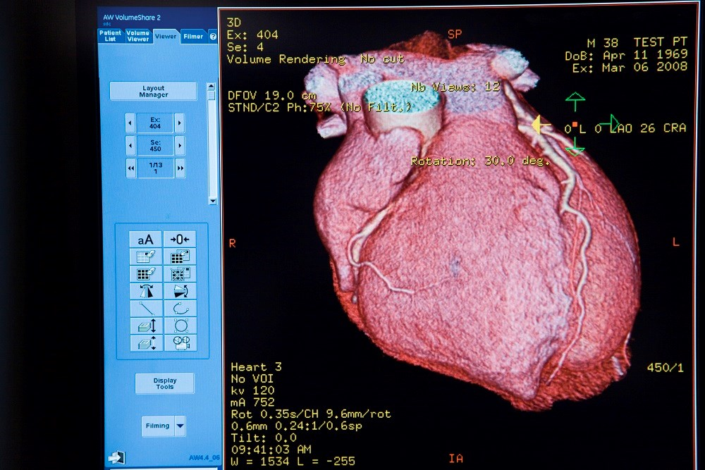 Researchers compared the diagnostic accuracy of imaging modalities for coronary artery disease diagnosis.